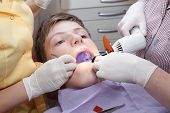 picture of uv-light  - dental treatment with ultraviolet dental curing light - JPG