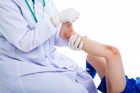 foto of bruises  - Doctor examining a patient suffering from injured on leg with a bruise - JPG