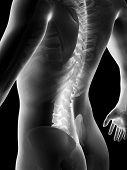 picture of vertebrae  - 3d rendered anatomy illustration of painful back - JPG