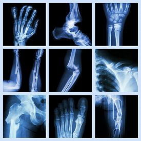 image of fracture  - Collection of bone fracture  - JPG