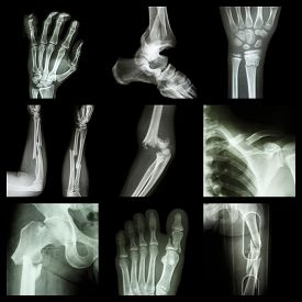 stock photo of fracture  - Collection of bone fracture  - JPG