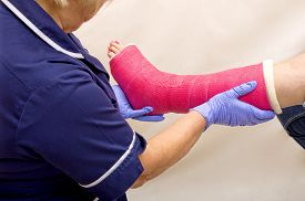 picture of fracture  - A nurse treating a ladies fractured leg in a pink cast - JPG