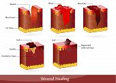 stock photo of scabs  - The process of wound healing - JPG