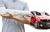 stock photo of wrecking  - closeup of bandaged arm with red wrecked car - JPG