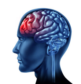 stock photo of frontal lobe  - Brain and Head ache pain represented by a red section - JPG