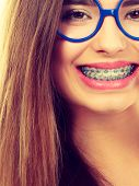 Dentist And Orthodontist Concept. Nerdy Geek Woman Wearing Big Eyeglasses Smiling Showing Her White  poster