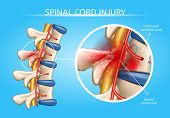 Spinal Cord Injury Vector Medical Scheme With Magnification Of Fractured Vertebral Body And Damaged  poster