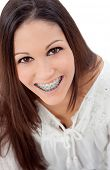 stock photo of crooked teeth  - Smiling teenager girl with brackets isolated on a white background - JPG