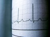 Sinus Heart Rhythm On Electrocardiogram Record Paper Showing Normal P Wave, Pr And Qt Interval And Q poster