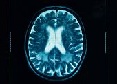 stock photo of radiation therapy  - Closeup of a ct scan in blue colors - JPG