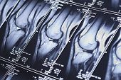 picture of mri  - My knee MRI  - JPG