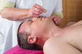 Acupuncturist Prepares To Tap Needle Around Face  Of Man poster