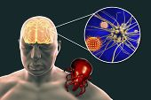 Tick-borne Encephalitis Concept, 3d Illustration Showing Brain Highlighted In Human Body, Tick Trans poster