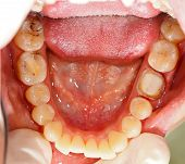 image of gingivitis  - Human molar tooth treated before a crown - JPG