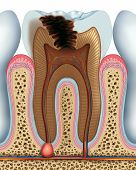 stock photo of gingivitis  - Cavity of a tooth in its advanced - JPG