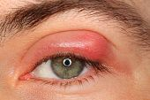 stock photo of pus  - illness person eye with sty and pus looking into the camera - JPG