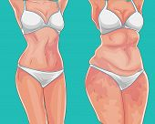 Fat Girl. Loss Weight On Diet Or Sport. Before Picture. Weight Loss Concept. poster