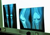 picture of prosthesis  - View of medical xray knee prosthesis in hospital - JPG