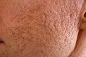 picture of scars  - Close up of problematic skin with deep acne scars on cheek - JPG