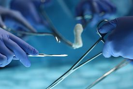 picture of surgical instruments  - Surgeons hands holding surgical instrument while operating patient in surgical theatre - JPG