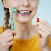 Dentist And Orthodontist Concept. Young Woman With Blue Braces Cleaning And Brushing Teeth Using Two poster