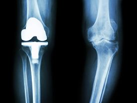picture of knee  - film x-ray knee of osteoarthritis knee patient and artificial joint